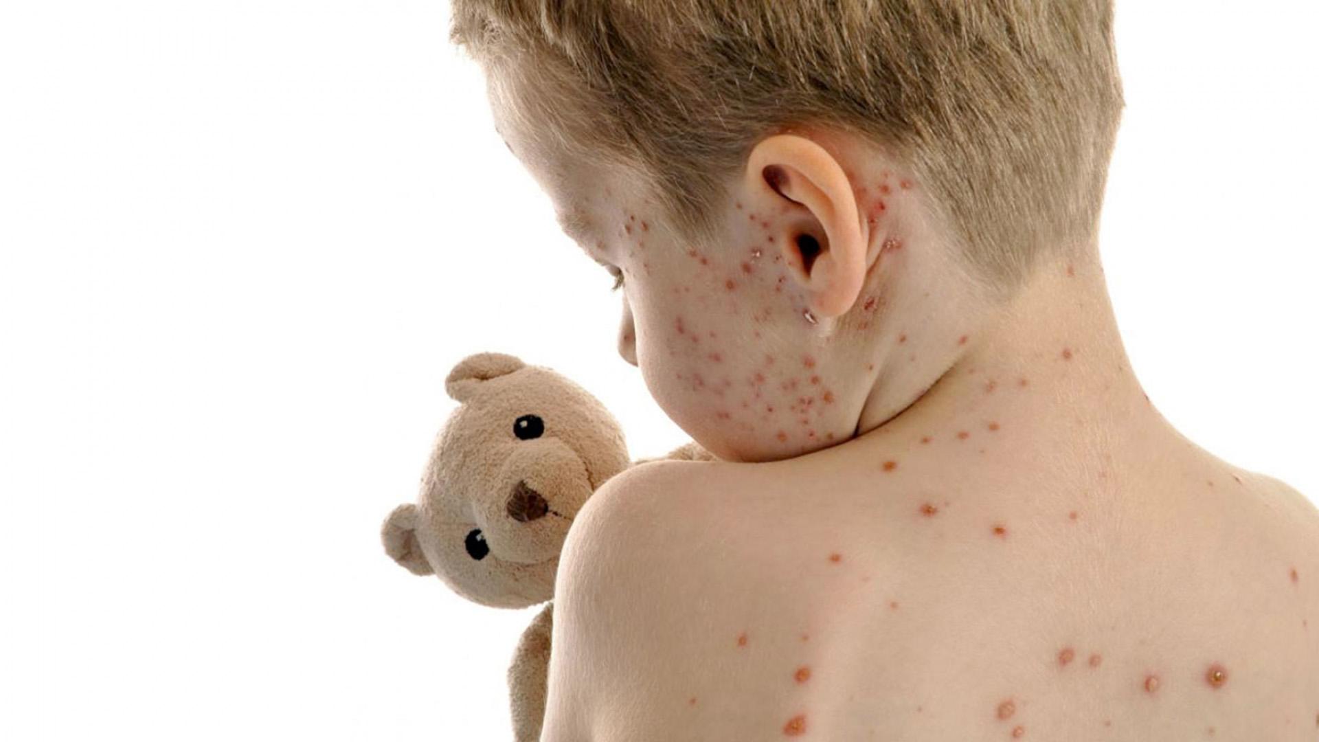 articulații după varicelă)