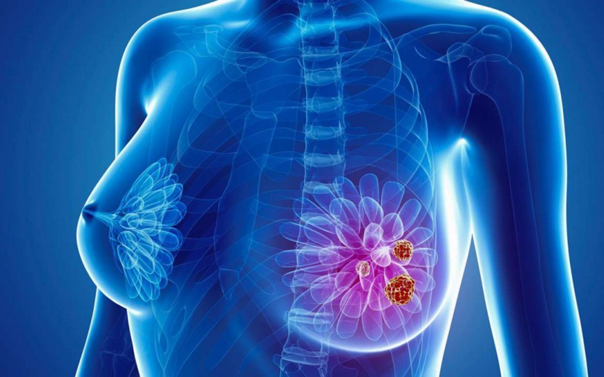 cancer mamar femei